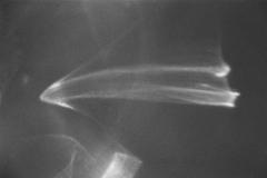 """4 -  """" battements d'ailes"""" série  inspirée par le roman  """"le ruban""""  - auteur OGAWA Ito (Japon 2016"""